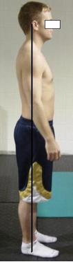 Ideal Side Posture