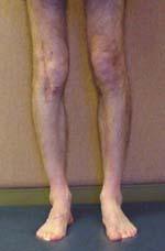 Tibial torsion relative to femur